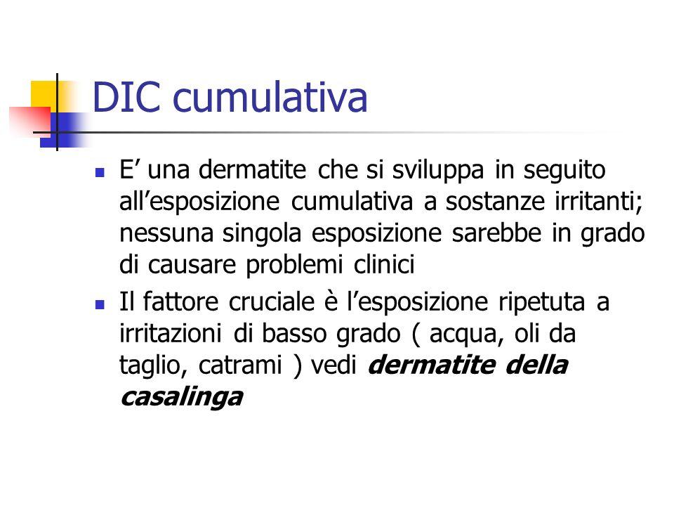 DIC cumulativa E una dermatite che si sviluppa in seguito allesposizione cumulativa a sostanze irritanti; nessuna singola esposizione sarebbe in grado