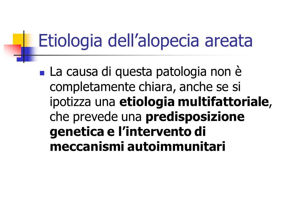 Etiologia dellalopecia areata La causa di questa patologia non è completamente chiara, anche se si ipotizza una etiologia multifattoriale, che prevede