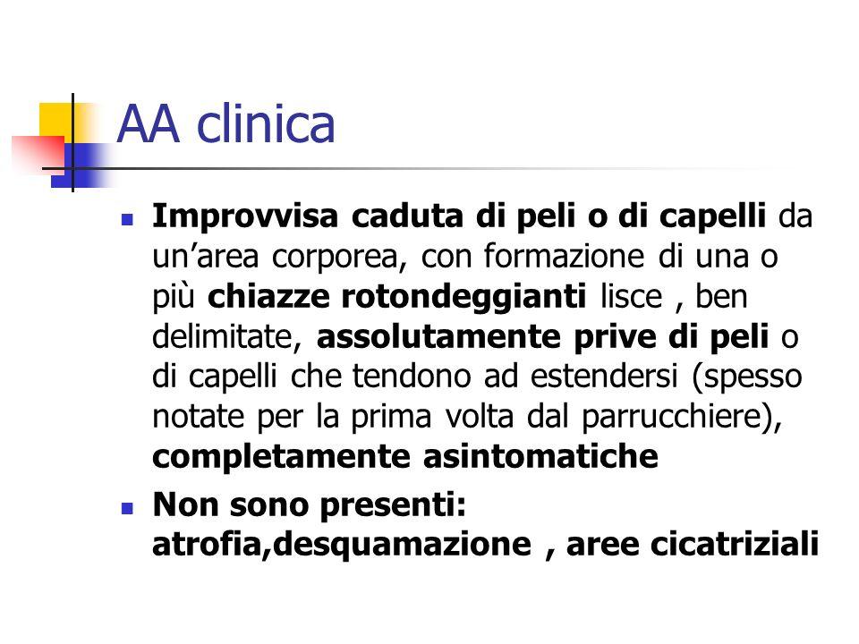 AA clinica Improvvisa caduta di peli o di capelli da unarea corporea, con formazione di una o più chiazze rotondeggianti lisce, ben delimitate, assolu