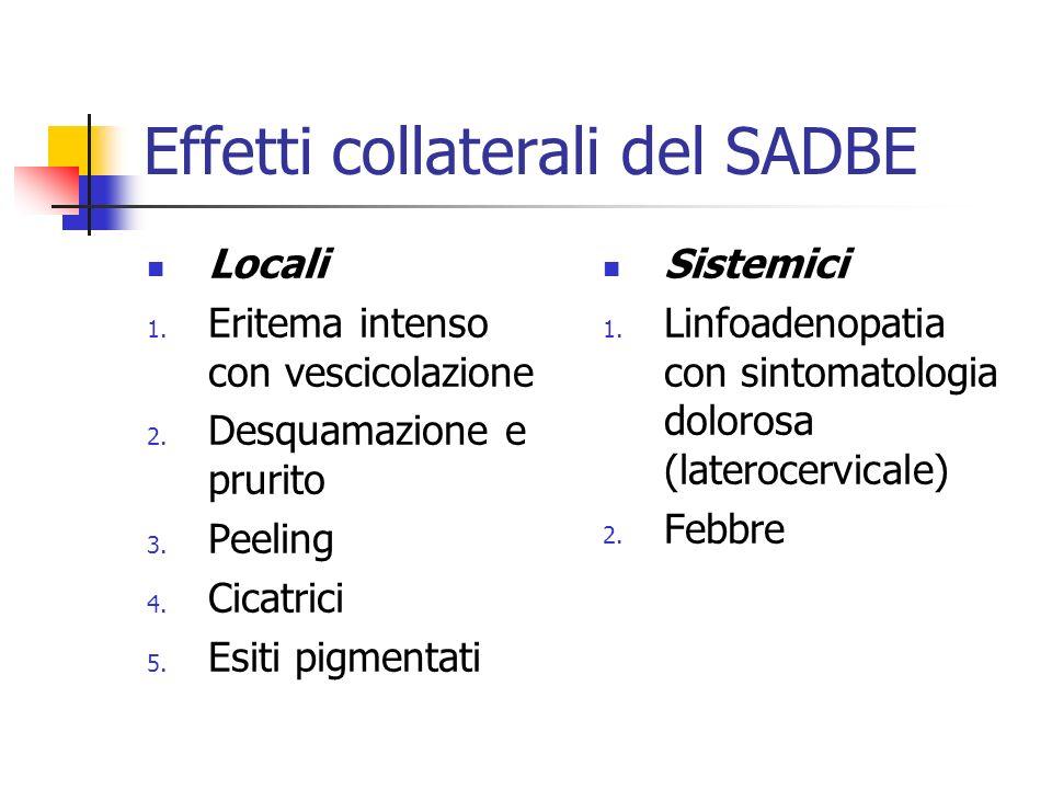 Effetti collaterali del SADBE Locali 1. Eritema intenso con vescicolazione 2. Desquamazione e prurito 3. Peeling 4. Cicatrici 5. Esiti pigmentati Sist