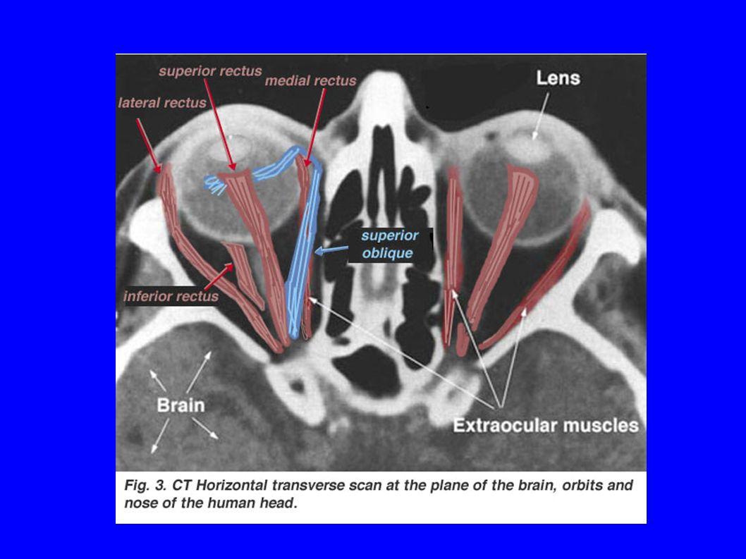 Difetti di refrazione Miopia Ipermetropia Presbiopia Astigmatismo