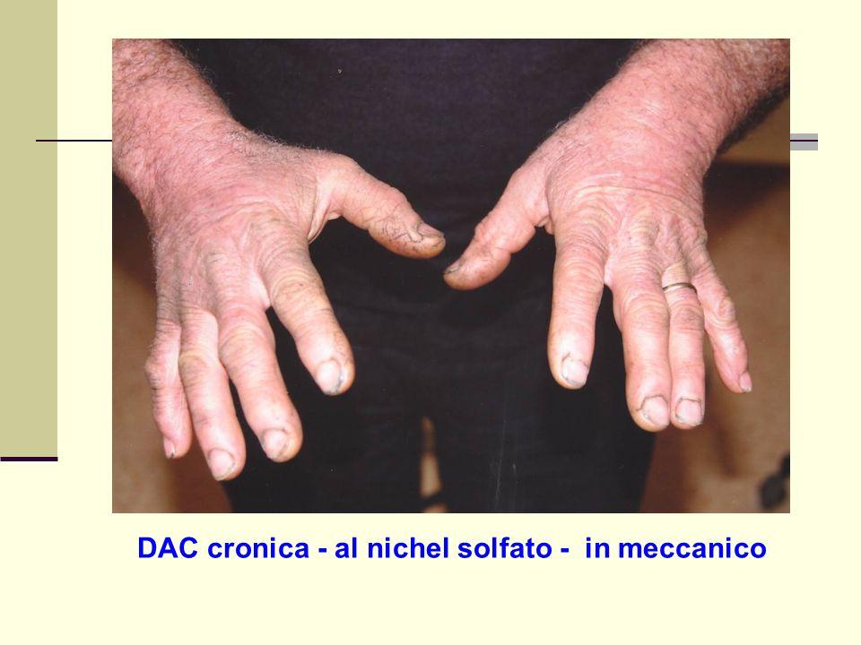 DAC cronica - al nichel solfato - in meccanico