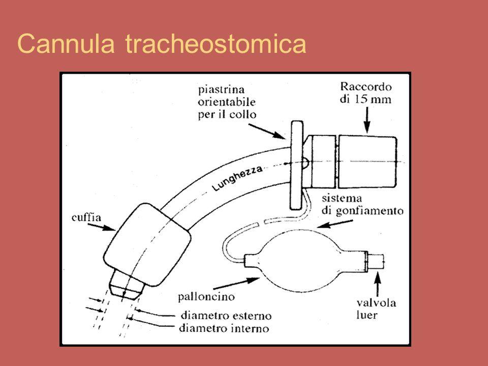 Complicazioni nella tracheostomia Sintomi di distress respiratorio Aumento della frequenza respiratoria Aumento della frequenza cardiaca Diminuzione della saturazione arteriosa dellossigeno Stridore dalla cannula Rumori fischianti mentre si respira Cianosi (pallore, colorazione blu attorno le labbra, unghie blu) Mancanza di fiato Cute sudata e lucida Retrazioni dei muscoli respiratori espiratori Ansietà, sguardo spaventato Estremità fredde Modificazione del polso o della pressione arteriosa Difficoltà o rifiuto di mangiare Incapacità di svegliare il paziente Utilizzo dei muscoli accessori respiratori Riduzione del flusso aria attraverso la cannula Maggior confort del paziente in posizione seduta o con piu cuscini