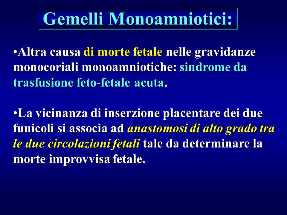 Gemelli Monoamniotici: Altra causa di morte fetale nelle gravidanze monocoriali monoamniotiche: sindrome da trasfusione feto-fetale acuta.Altra causa