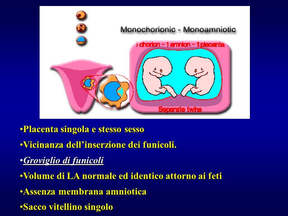 Placenta singola e stesso sessoPlacenta singola e stesso sesso Vicinanza dellinserzione dei funicoli.Vicinanza dellinserzione dei funicoli. Groviglio