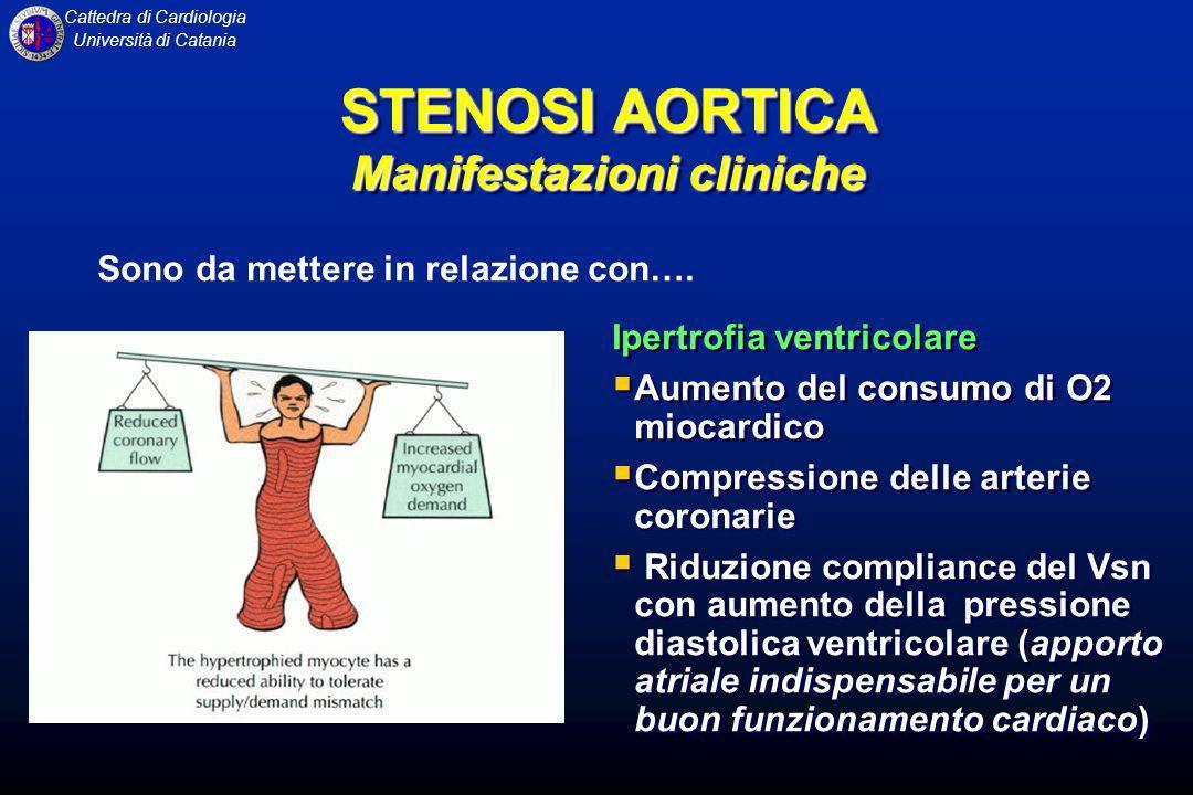 Cattedra di Cardiologia Università di Catania Ipertrofia ventricolare Aumento del consumo di O2 miocardico Compressione delle arterie coronarie Riduzi