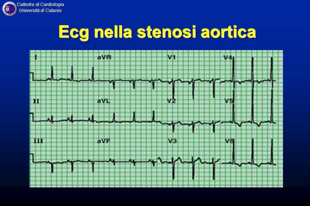 Cattedra di Cardiologia Università di Catania Ecg nella stenosi aortica