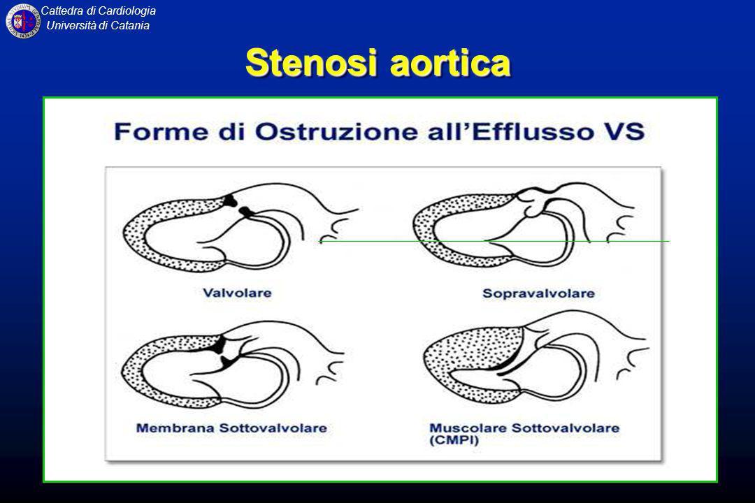 Cattedra di Cardiologia Università di Catania INSUFFICIENZA AORTICA E caratterizzata da reflusso diastolico dallaorta in ventricolo sinistro per lesioni dei lembi valvolari semilunari aortici o dellaorta ascendente con coinvolgimento dei lembi valvolari.