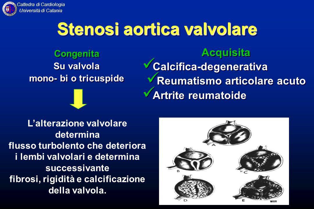 Cattedra di Cardiologia Università di Catania Degenerazione fibro-calcifica di una valvola aortica congenitamente malformata (spesso bicuspide): fenomeno accentuato dal trauma meccanico del flusso turbolento del sangue.