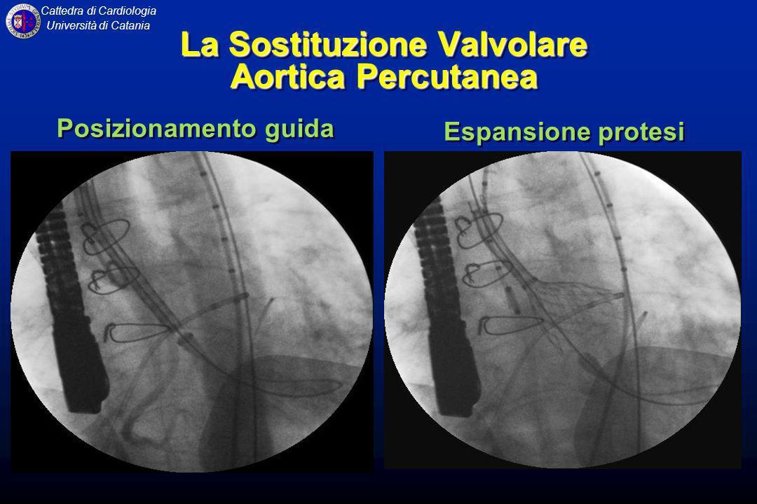 Cattedra di Cardiologia Università di Catania La Sostituzione Valvolare Aortica Percutanea Espansione protesi Posizionamento guida