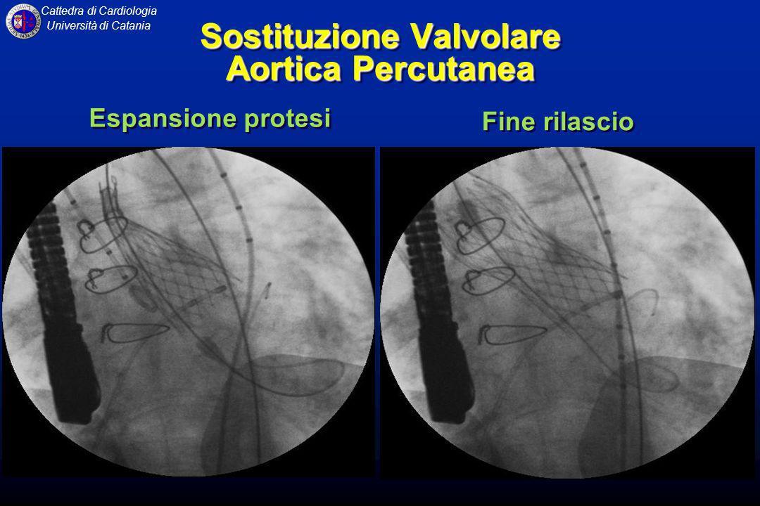 Cattedra di Cardiologia Università di Catania Sostituzione Valvolare Aortica Percutanea Fine rilascio Espansione protesi