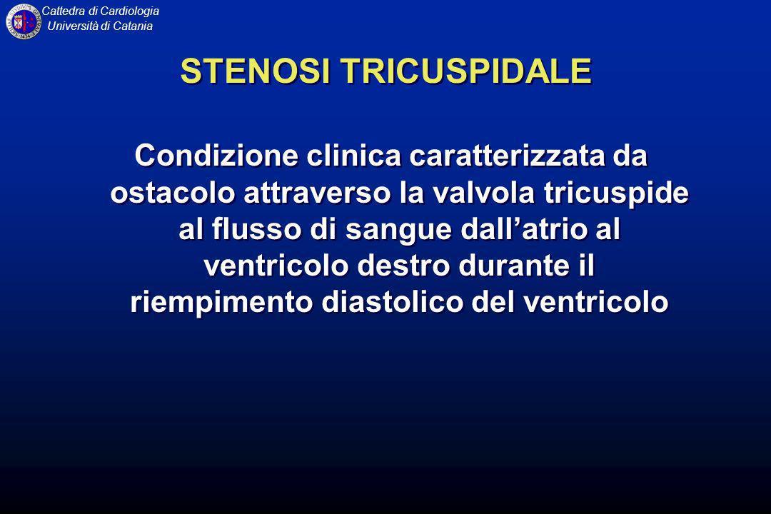 Cattedra di Cardiologia Università di Catania STENOSI TRICUSPIDALE Condizione clinica caratterizzata da ostacolo attraverso la valvola tricuspide al f