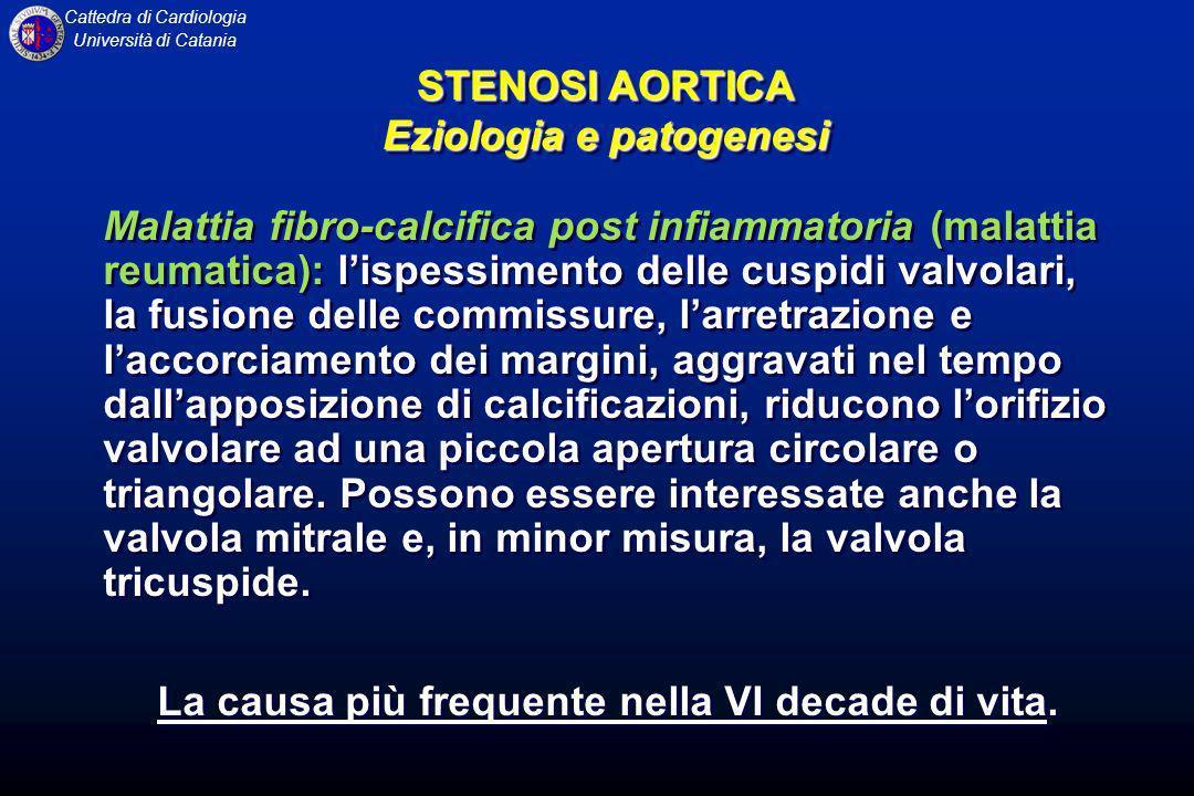 Cattedra di Cardiologia Università di Catania STENOSI AORTICA Test diagnostici ELETTROCARDIOGRAMMA: Segni di ipertrofia ventricolare sin, con turbe secondarie della ripolarizzazione ventricolare RX TORACE: Profilo cardiaco con configurazione aortica: apice cardiaco arrotondato (in casi di marcata ipertrofia) e maggiore sporgenza verso sinistra ELETTROCARDIOGRAMMA: Segni di ipertrofia ventricolare sin, con turbe secondarie della ripolarizzazione ventricolare RX TORACE: Profilo cardiaco con configurazione aortica: apice cardiaco arrotondato (in casi di marcata ipertrofia) e maggiore sporgenza verso sinistra