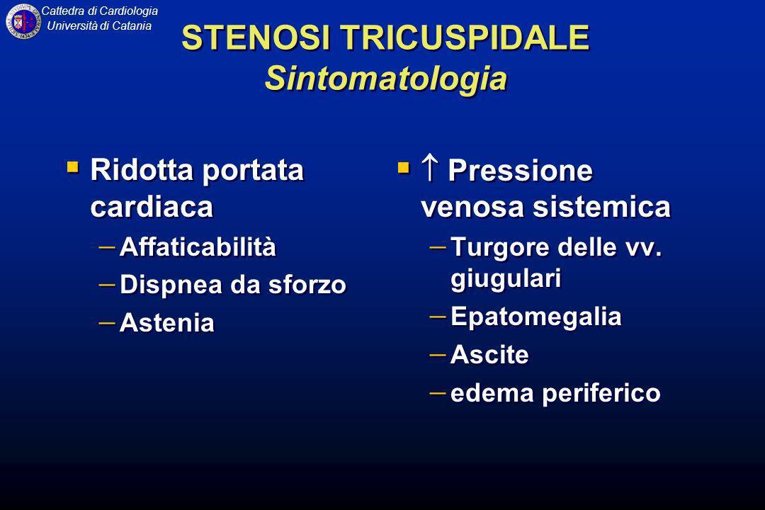 Cattedra di Cardiologia Università di Catania STENOSI TRICUSPIDALE Sintomatologia Ridotta portata cardiaca Affaticabilità Dispnea da sforzo Astenia Ri