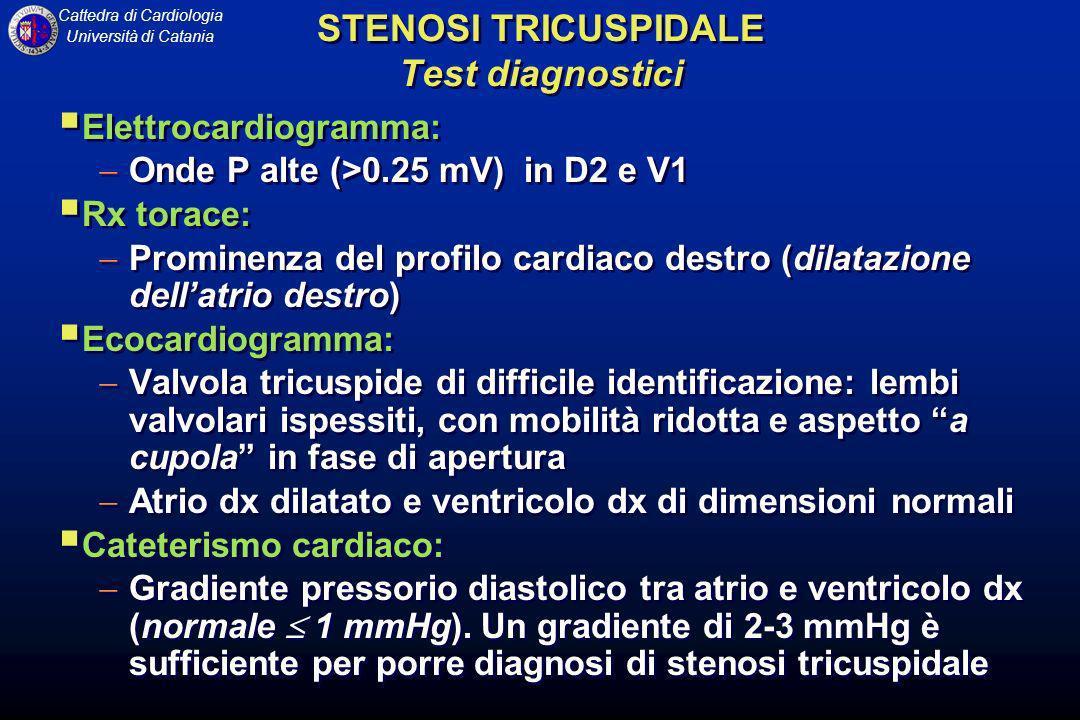 Cattedra di Cardiologia Università di Catania Elettrocardiogramma: Onde P alte (>0.25 mV) in D2 e V1 Rx torace: Prominenza del profilo cardiaco destro