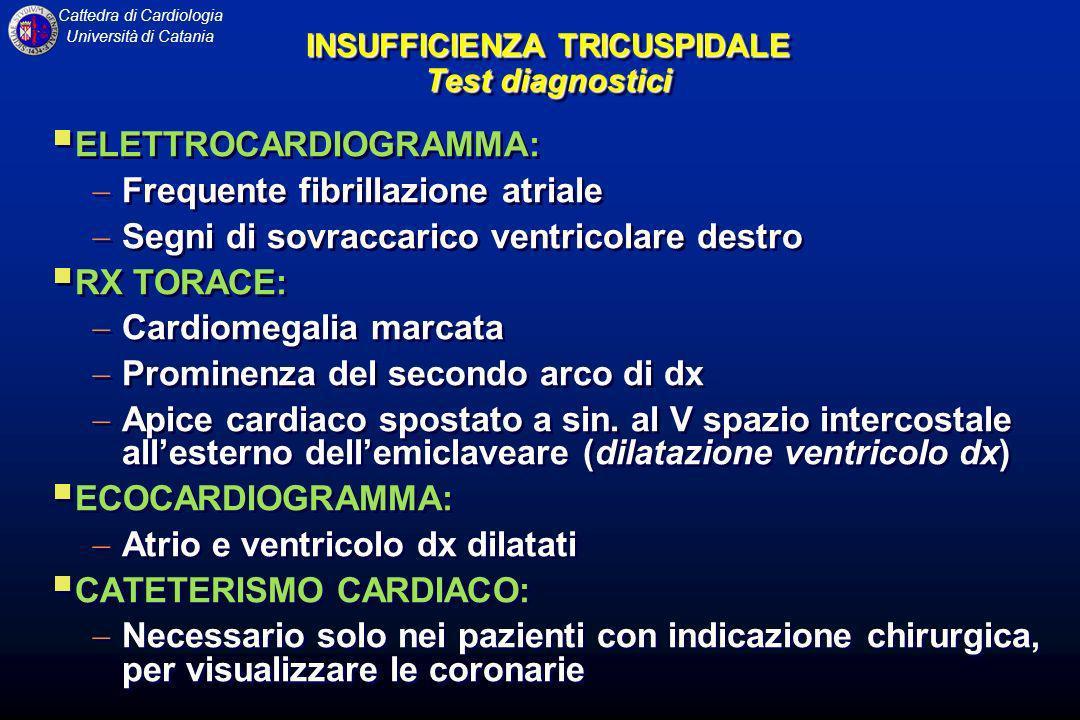 Cattedra di Cardiologia Università di Catania INSUFFICIENZA TRICUSPIDALE Test diagnostici ELETTROCARDIOGRAMMA: Frequente fibrillazione atriale Segni d