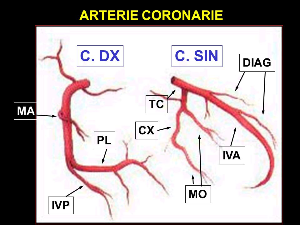 MO CX TC IVA DIAG MA IVP PL C. SINC. DX ARTERIE CORONARIE