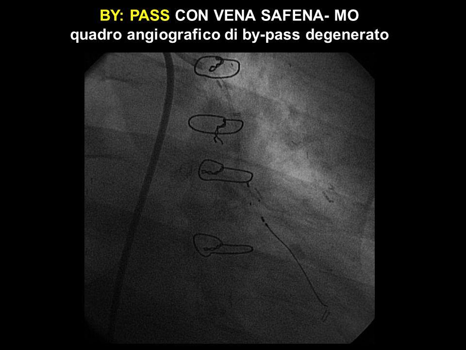 BY: PASS CON VENA SAFENA- MO quadro angiografico di by-pass degenerato