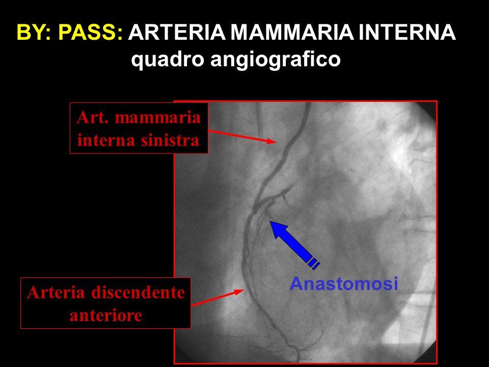 Art. mammaria interna sinistra Arteria discendente anteriore BY: PASS: ARTERIA MAMMARIA INTERNA quadro angiografico Anastomosi