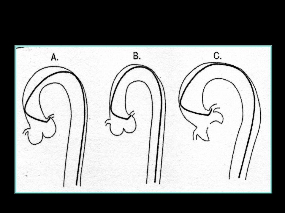 Art. IVA CORONARIA SIN. proiez. craniale dx