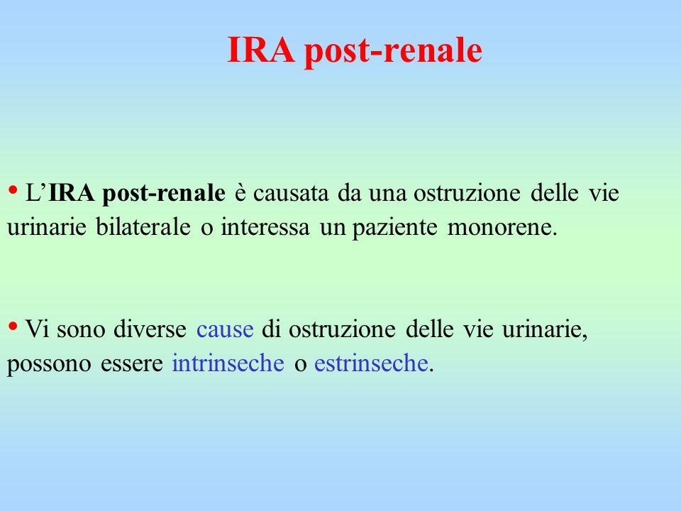 LIRA post-renale è causata da una ostruzione delle vie urinarie bilaterale o interessa un paziente monorene. Vi sono diverse cause di ostruzione delle