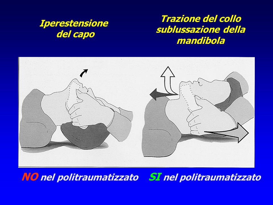 Iperestensione del capo NO nel politraumatizzato Trazione del collo sublussazione della mandibola SI nel politraumatizzato