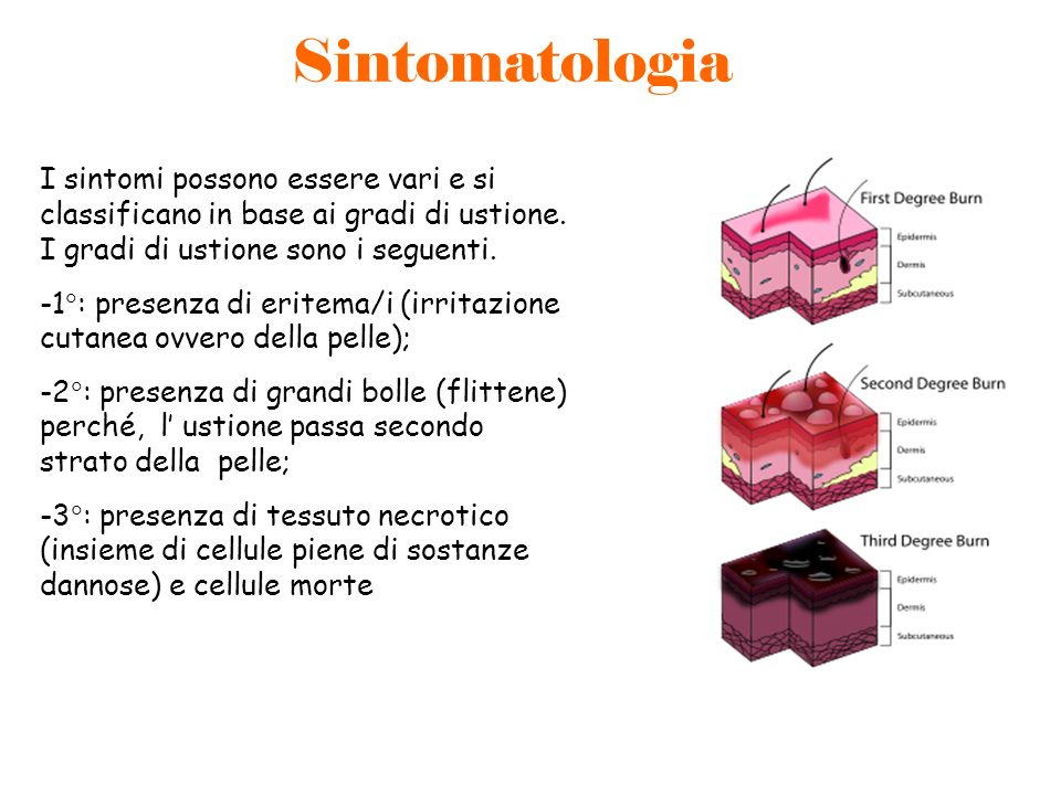 Sintomatologia I sintomi possono essere vari e si classificano in base ai gradi di ustione. I gradi di ustione sono i seguenti. -1 : presenza di erite