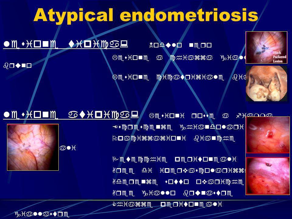 LENDOMETRIOSI PROFONDA Chirurgia delle vie urinarie : quando intervenire vescica (1%): lesione sintomatica ( dolore, disuria, stranguria, ematuria) vescica (1%): lesione sintomatica ( dolore, disuria, stranguria, ematuria) NB: la lesione coinvolge sempre la tonaca muscolare tecnica : escissione possibilmente extramucosa con sutura in unico o duplice strato (muscolare-mucosa e sierosa) o duplice strato (muscolare-mucosa e sierosa) uretere (1%): coinvolto quasi sempre ab estrinseco uretere (1%): coinvolto quasi sempre ab estrinseco la lesione va sempre trattata ( valutare rene escluso) la lesione va sempre trattata ( valutare rene escluso) tecnica : ureterolisi ureteroureterostomia ureteroureterostomia ureteroneocistostomia ureteroneocistostomia