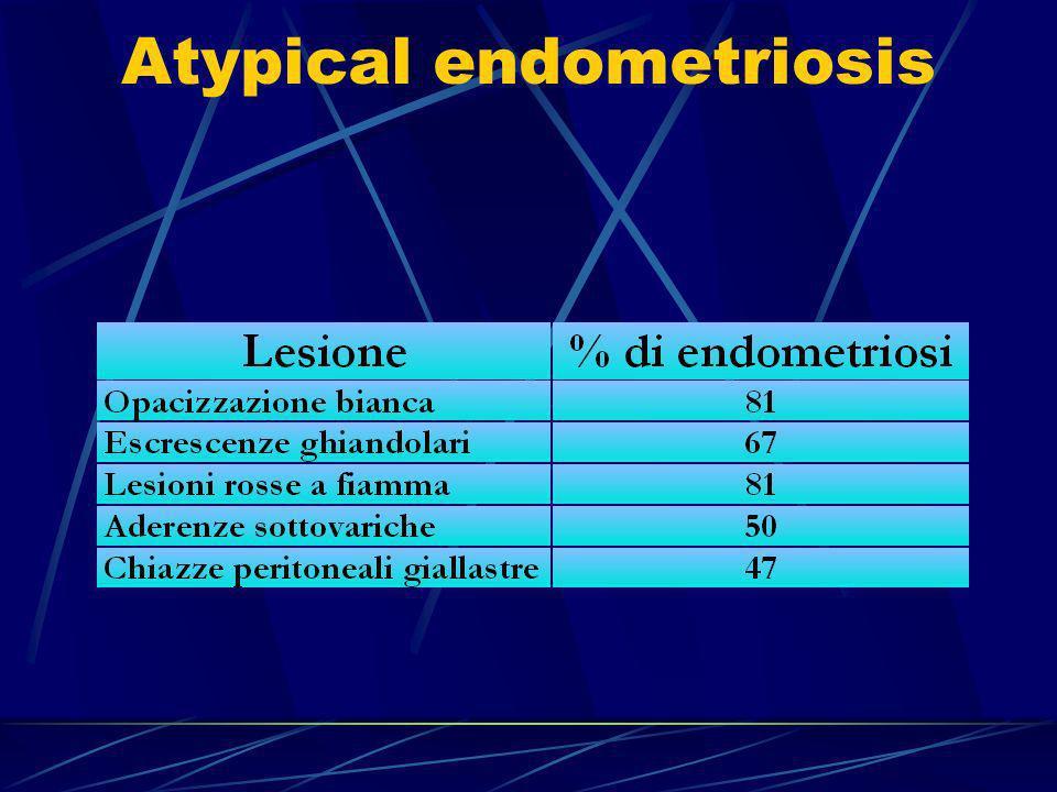 Il trattamento dellendometriosi lieve Familiarità Le donne con una parente di I grado affetta da endometriosi hanno un rischio aumentato da 6 a 10 volte di ammalarsi