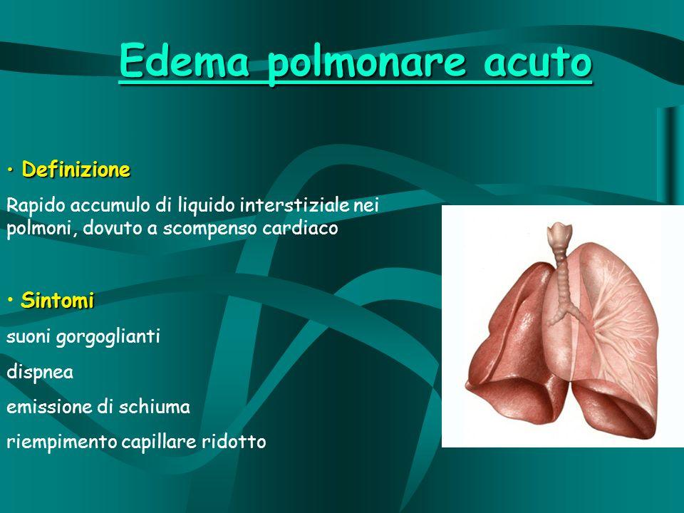Edema polmonare acuto Definizione Definizione Rapido accumulo di liquido interstiziale nei polmoni, dovuto a scompenso cardiaco Sintomi suoni gorgoglianti dispnea emissione di schiuma riempimento capillare ridotto