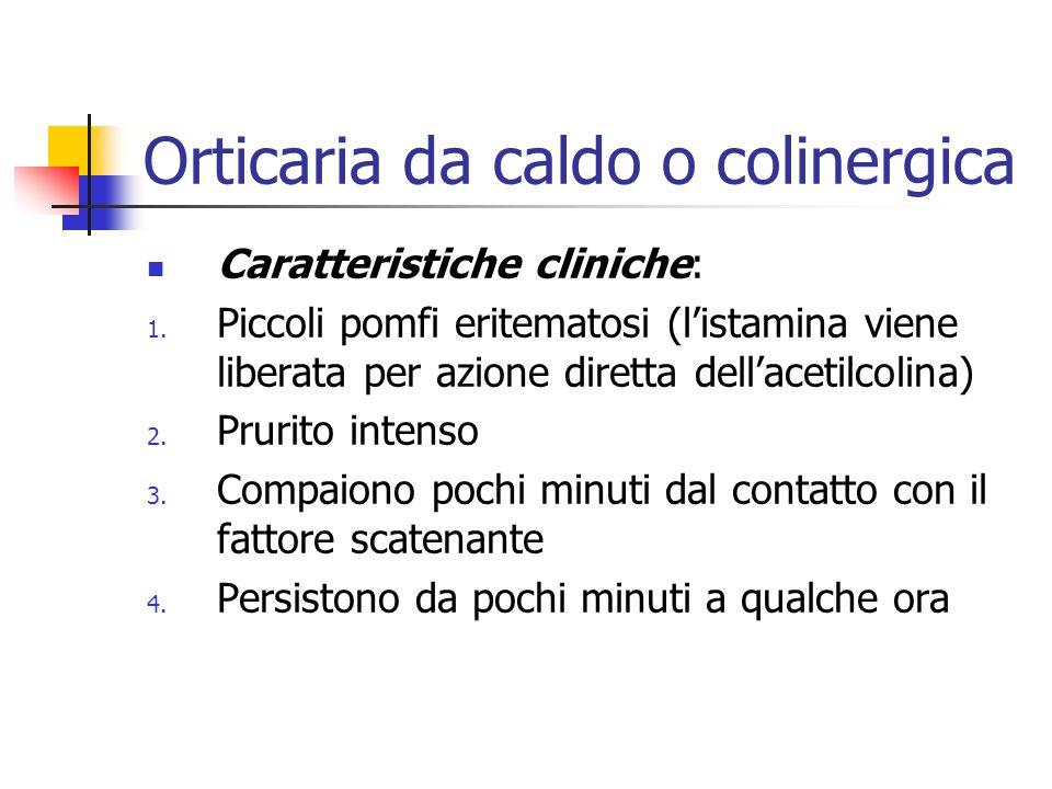 Orticaria da caldo o colinergica Caratteristiche cliniche: 1.