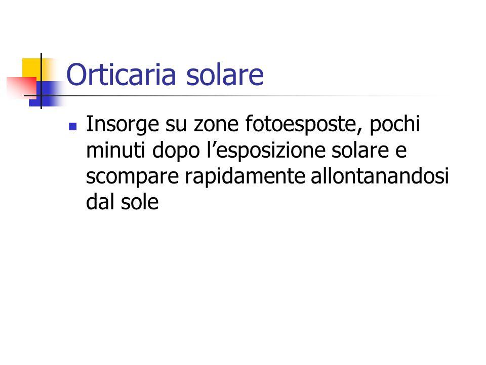 Orticaria solare Insorge su zone fotoesposte, pochi minuti dopo lesposizione solare e scompare rapidamente allontanandosi dal sole