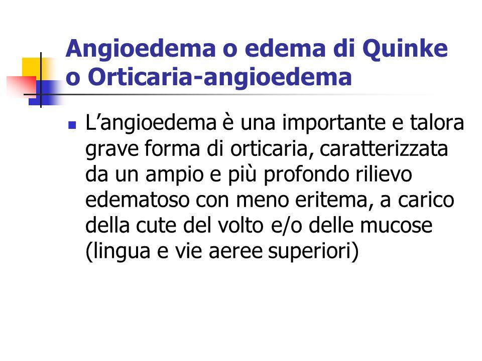 Angioedema o edema di Quinke o Orticaria-angioedema Langioedema è una importante e talora grave forma di orticaria, caratterizzata da un ampio e più profondo rilievo edematoso con meno eritema, a carico della cute del volto e/o delle mucose (lingua e vie aeree superiori)