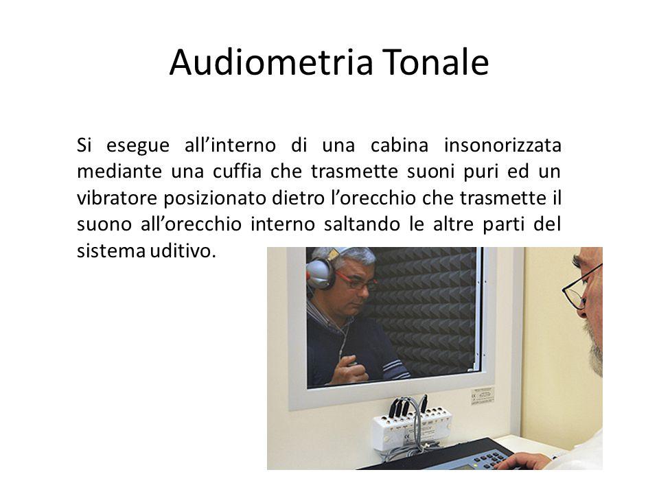 Audiometria Tonale Si esegue allinterno di una cabina insonorizzata mediante una cuffia che trasmette suoni puri ed un vibratore posizionato dietro lorecchio che trasmette il suono allorecchio interno saltando le altre parti del sistema uditivo.