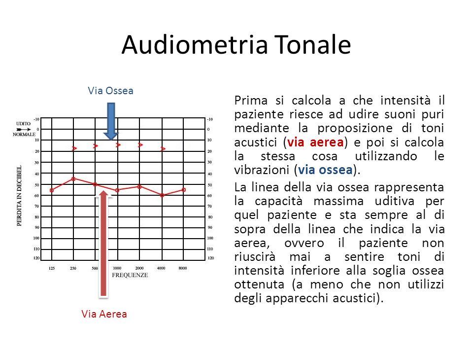 Audiometria Tonale Prima si calcola a che intensità il paziente riesce ad udire suoni puri mediante la proposizione di toni acustici (via aerea) e poi si calcola la stessa cosa utilizzando le vibrazioni (via ossea).