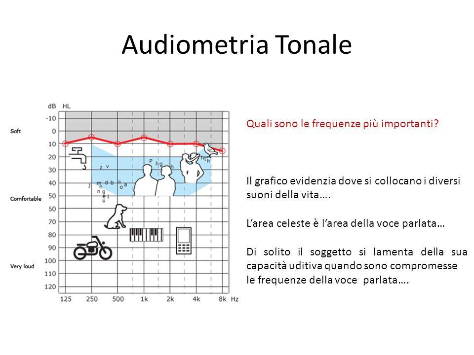 Audiometria Tonale Quali sono le frequenze più importanti.