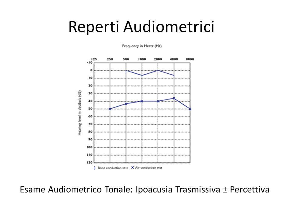 Reperti Audiometrici Esame Audiometrico Tonale: Ipoacusia Trasmissiva ± Percettiva