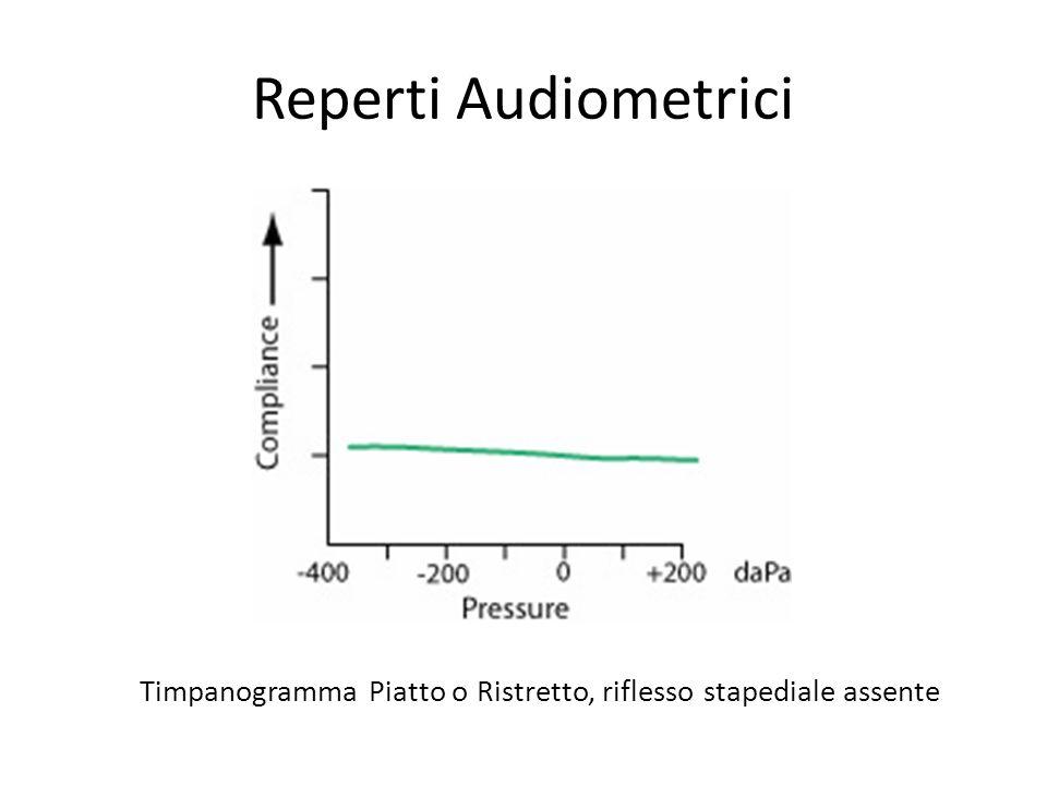 Reperti Audiometrici Timpanogramma Piatto o Ristretto, riflesso stapediale assente