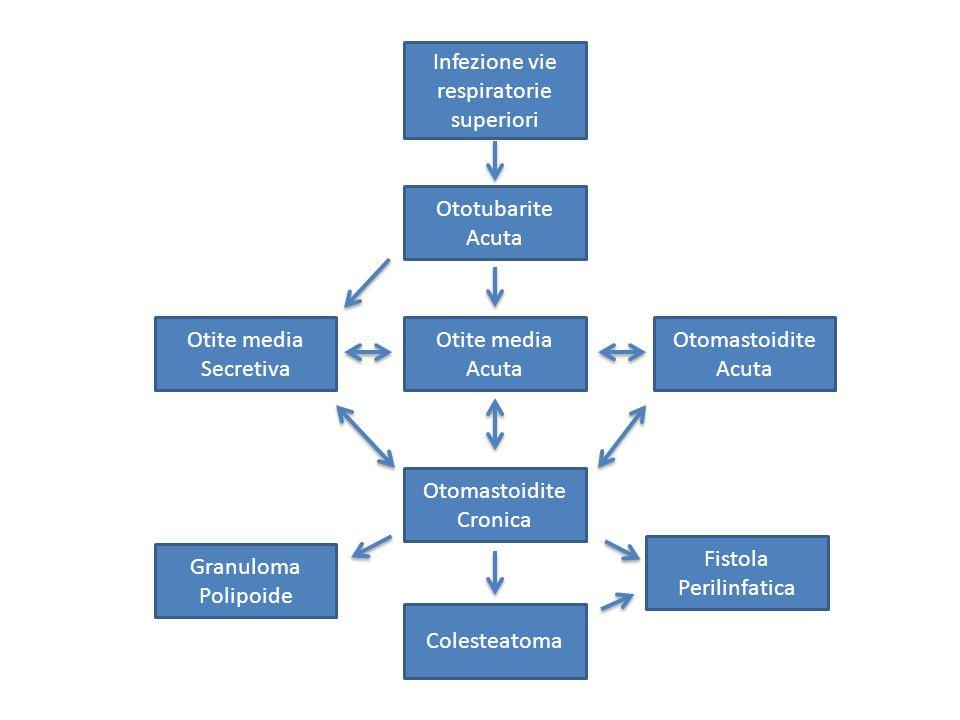 Infezione vie respiratorie superiori Ototubarite Acuta Otite media Acuta Otomastoidite Acuta Otomastoidite Cronica Fistola Perilinfatica Colesteatoma