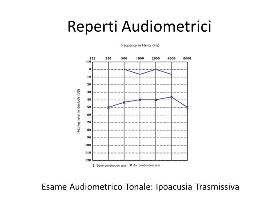 Reperti Audiometrici Timpanogramma Piatto, riflesso stapediale solitamente assente