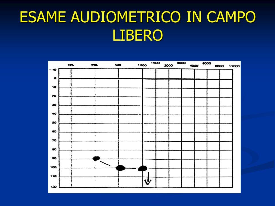 ESAME AUDIOMETRICO IN CAMPO LIBERO