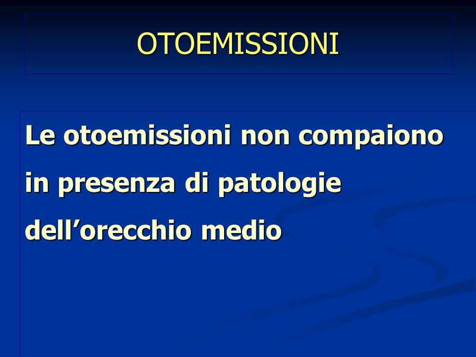 OTOEMISSIONI Le otoemissioni non compaiono in presenza di patologie dellorecchio medio