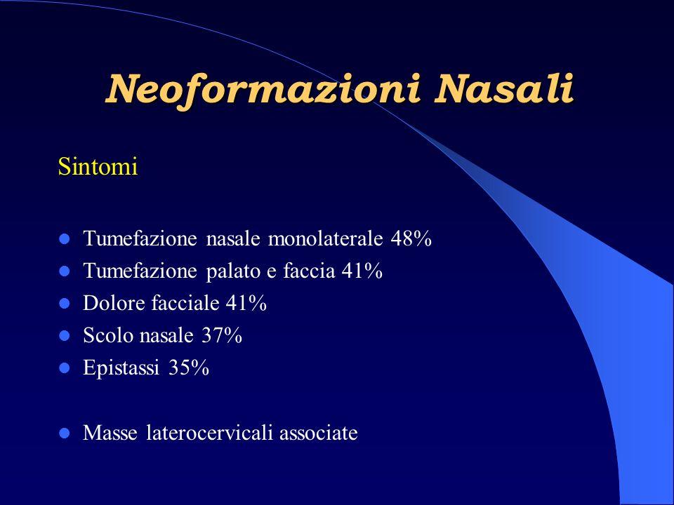 Neoformazioni Nasali Sintomi Tumefazione nasale monolaterale 48% Tumefazione palato e faccia 41% Dolore facciale 41% Scolo nasale 37% Epistassi 35% Masse laterocervicali associate
