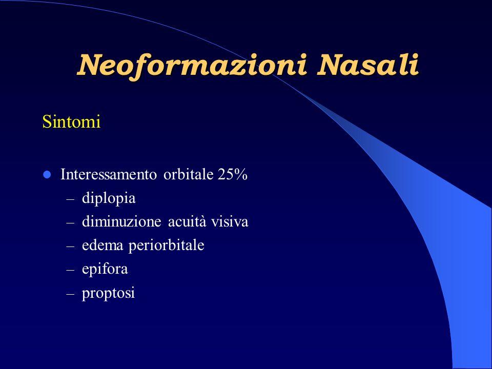 Neoformazioni Nasali Sintomi Interessamento orbitale 25% – diplopia – diminuzione acuità visiva – edema periorbitale – epifora – proptosi
