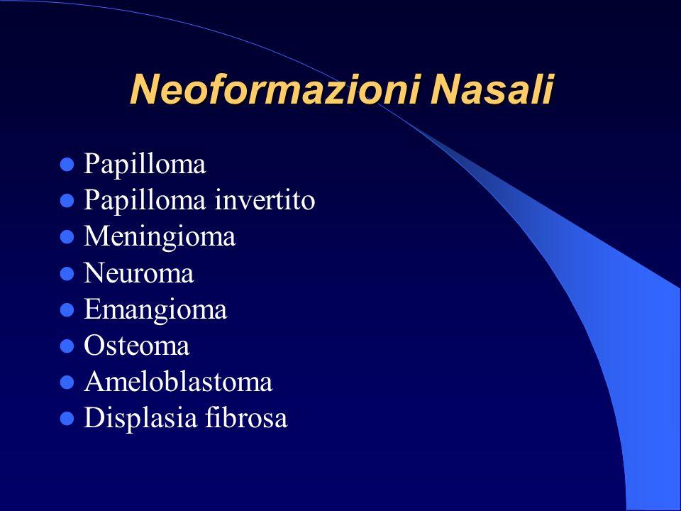 Papilloma Papilloma invertito Meningioma Neuroma Emangioma Osteoma Ameloblastoma Displasia fibrosa Neoformazioni Nasali