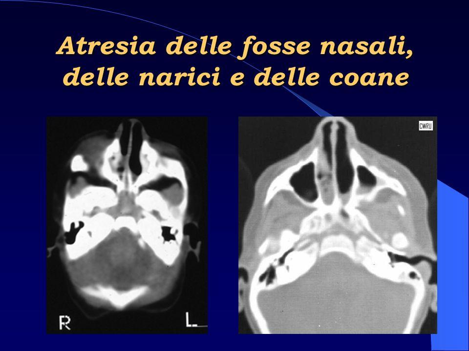Neoformazioni Nasali Sintomi Interessamento nasale 50% – rinite e sinusite – ostruzione nasale unilaterale o rinorrea, spesso sanguinolenta