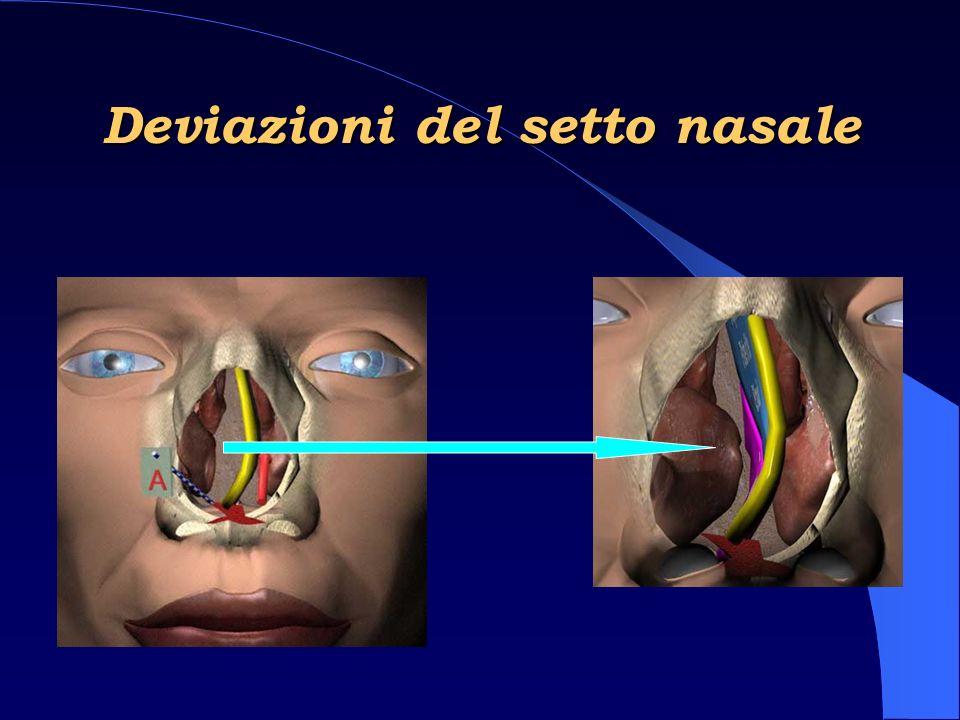 Triade sintomatologica classica – Asimmetria facciale – Massa tumorale in cavità orale – Massa nasale Presenza di uno su tre: 90% Tutti presenti: 50% Neoformazioni Nasali