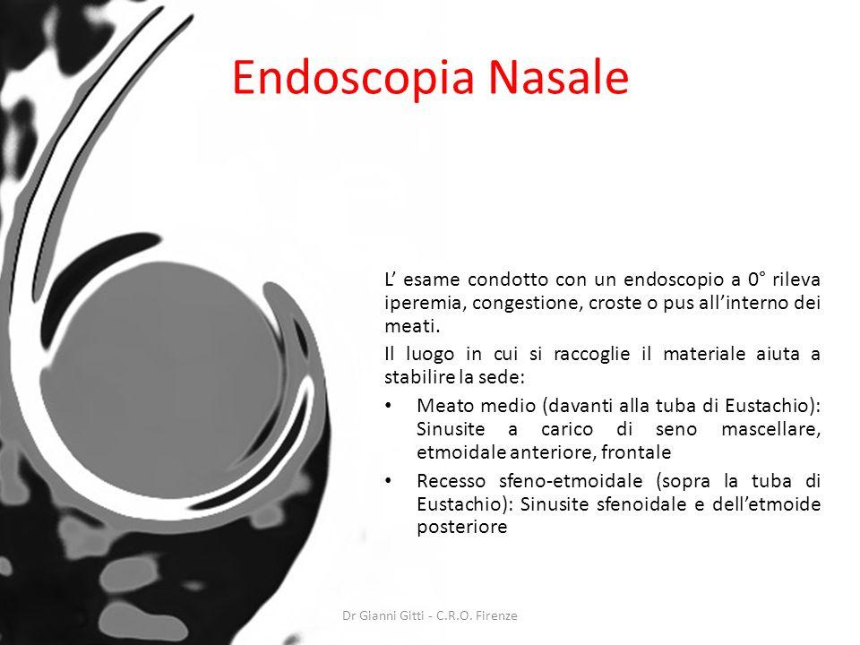 Endoscopia Nasale L esame condotto con un endoscopio a 0° rileva iperemia, congestione, croste o pus allinterno dei meati. Il luogo in cui si raccogli