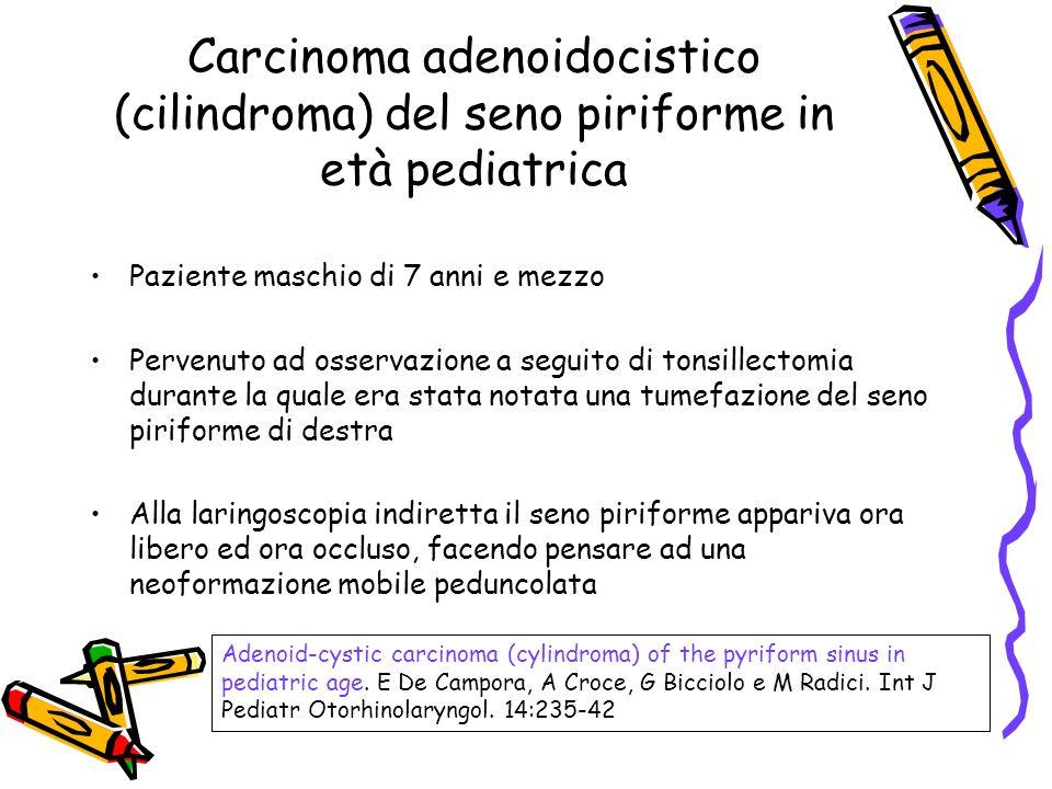 Carcinoma adenoidocistico (cilindroma) del seno piriforme in età pediatrica Paziente maschio di 7 anni e mezzo Pervenuto ad osservazione a seguito di