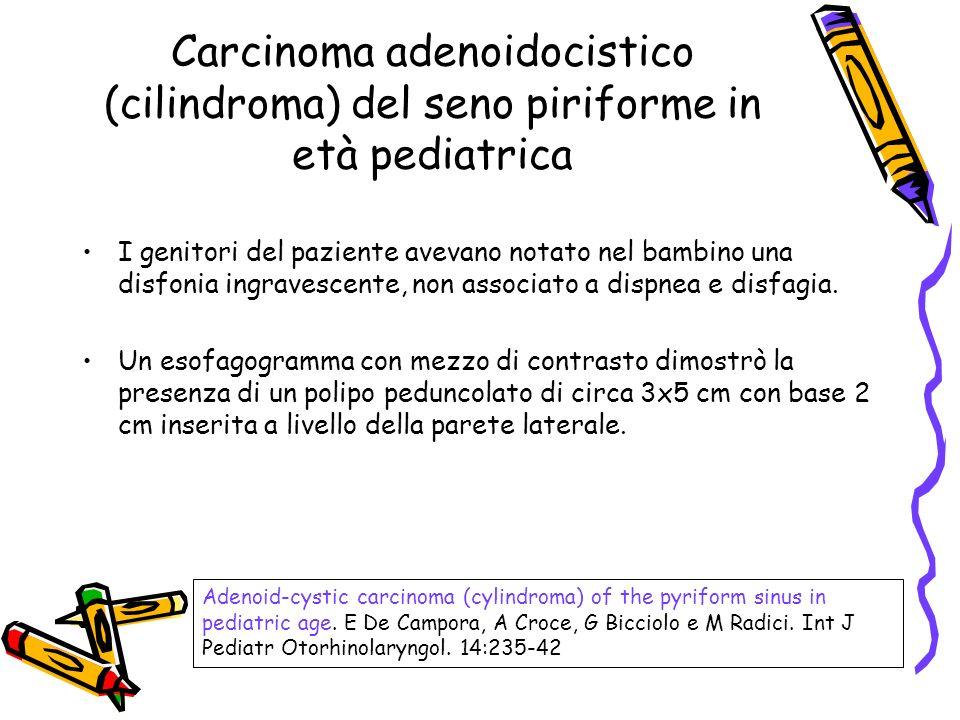 Carcinoma adenoidocistico (cilindroma) del seno piriforme in età pediatrica I genitori del paziente avevano notato nel bambino una disfonia ingravesce